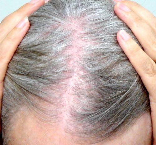idosos com queda de cabelos