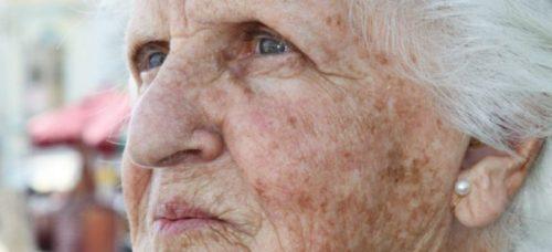 envelhecimento da pele do idoso