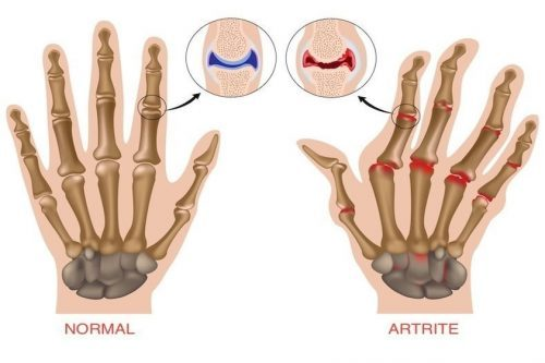 artrite nos idosos exercícios