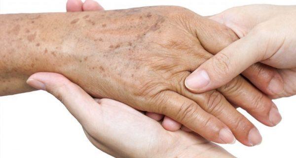 manchas na pele dos idosos