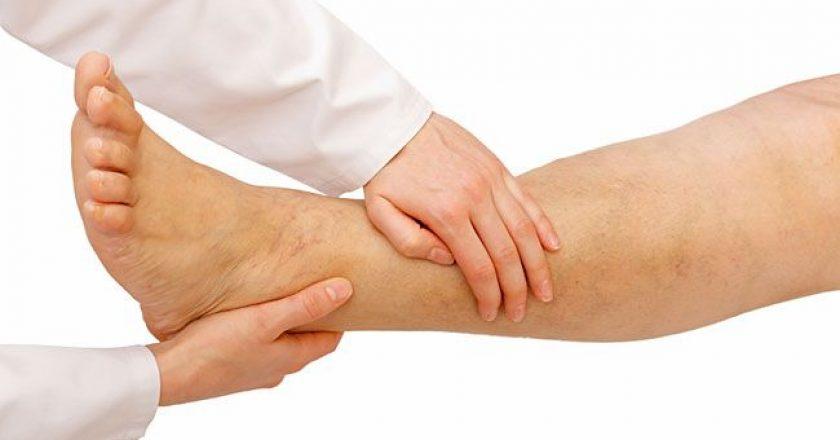 pernas inchadas nos idosos