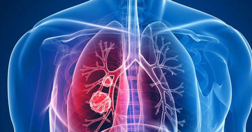 Câncer de pulmão nos idosos