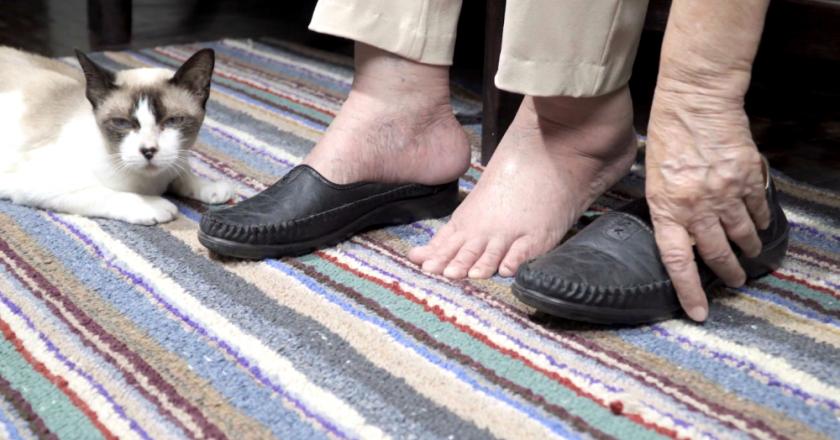 Sapato adequado e inadequado para idosos