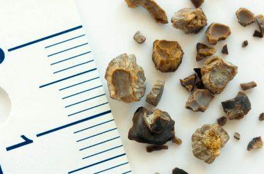 pedras nos rins dos idosos