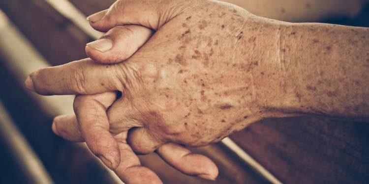 manchas na pele, qual a idade