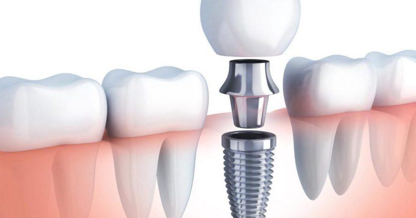implante dentário na terceira idade